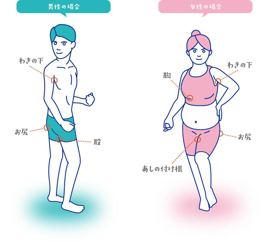 ヒュミラ(アダリムマブ)説明会 化膿性汗腺炎について
